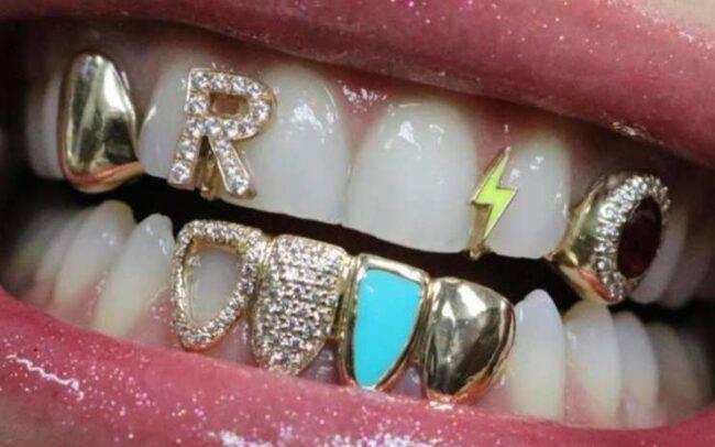 rita ora denti oro look